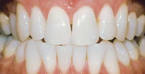 Reálne zuby po bielení s pásikmi Crest 3D White Professional Effects