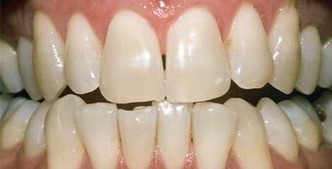 Reálne zuby pred bielením s pásikmi Crest 3D White Professional Effects