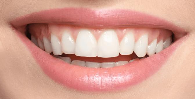 Zuby po bielení s pásikmi Crest 3D White Professional Effects