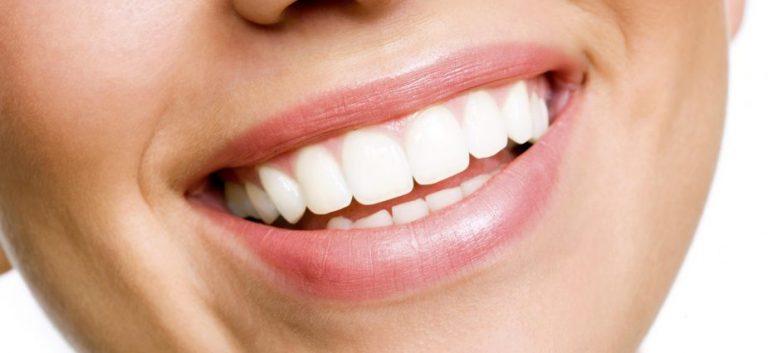 Bílý úsměv