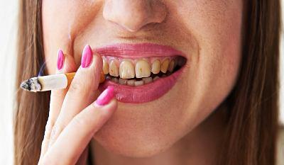 Žluté zuby kouření